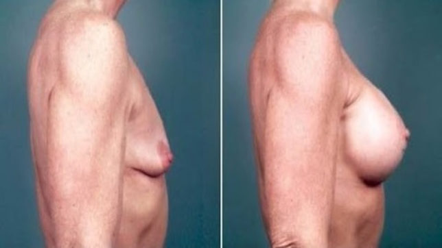 Male breast enlargement is common, can be easily treated