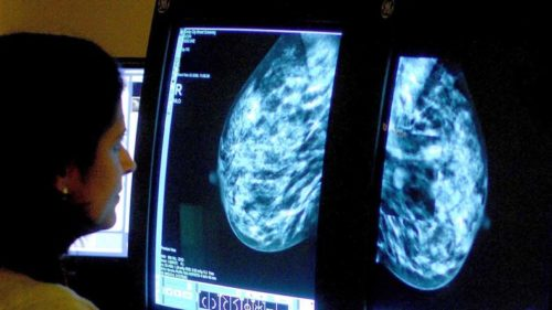 Screening all women for cancer genes may be cost effective